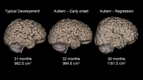 abnormal-brain-growth-linked-to-regressive-autism-in-boys